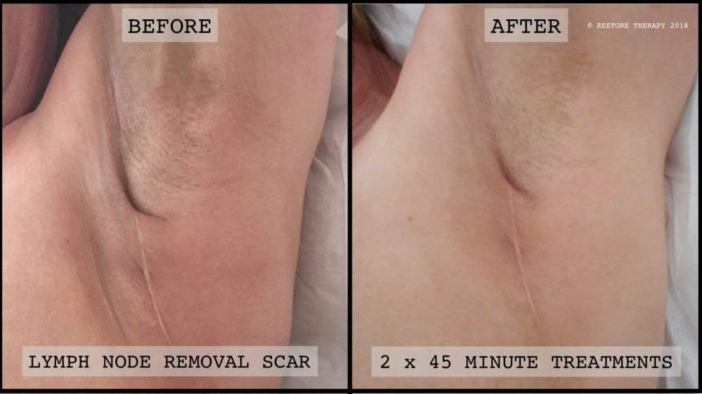 Axillary Lymph Node Clearance. 2 x 45 minute treatments one month apart. 6 months post-op
