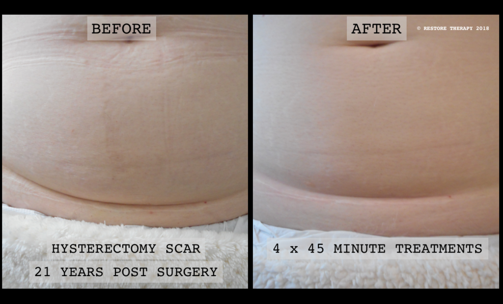hysterectomy scar before and after
