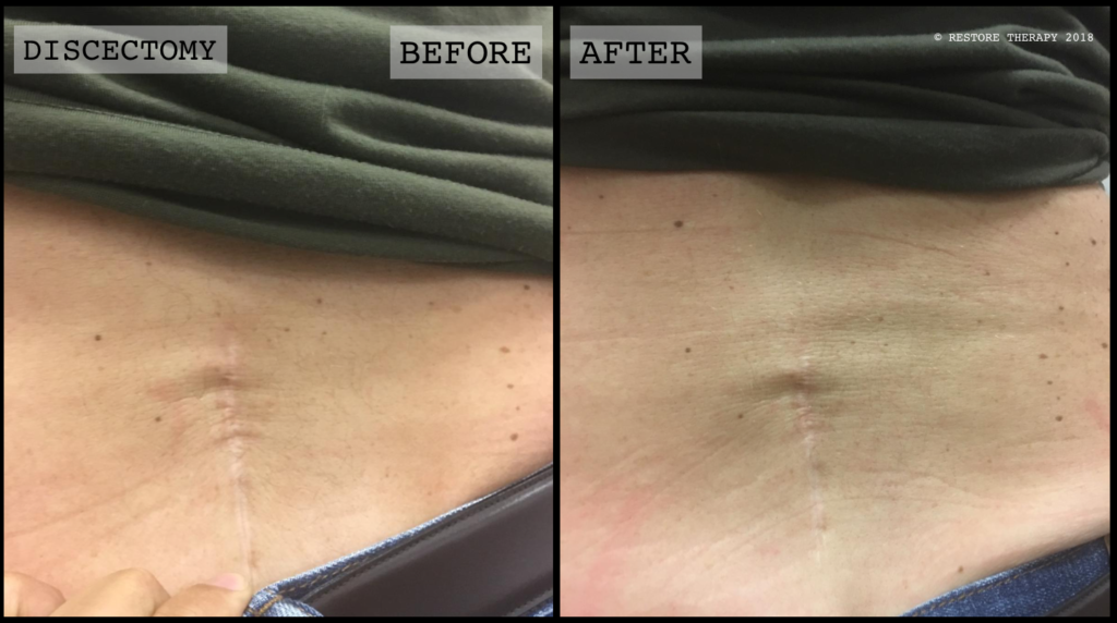 discectomy scar before and after