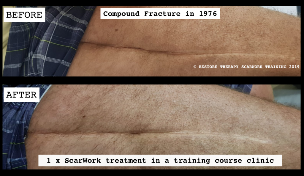 COMPOUND FRACTURE SCAR BEFORE AND AFTER