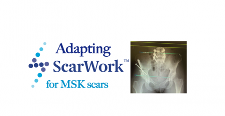 msk scar tissue release
